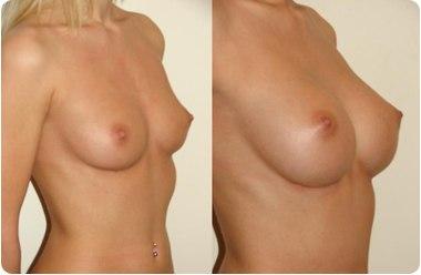 крем для увеличения грудины