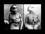 Цирк уродов , 10 самых страшных историй ужасных заболеваний x264