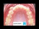 Видео 31. Лечение скученности и дистопии клыков. Брекеты Damon Q/ (Часть 1 - ВЧ)