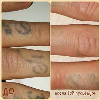 Лазерное удаление татуировок Улица Петрова Чебоксары лазерная эпиляция с какого возраста