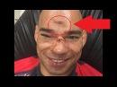 Киборг Сантос ляжет на операционный стол после тяжелого нокаута