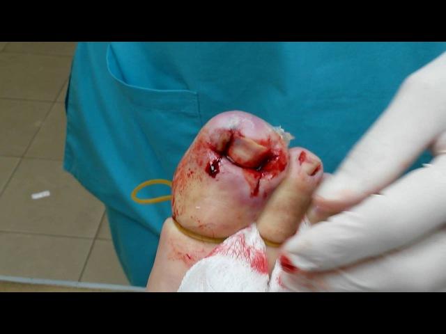 Лечение вросшего ногтя на нескольких пальцах