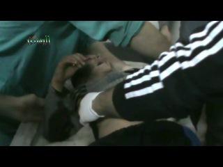 Ребенок получил ранения в результате удара по Хомсу