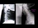 Адекватность рентгеновского снимка шейного отдела позвоночника в боковой проекции fltrdfnyjcnm htynutyjdcrjuj cybvrf itqyjuj jnl