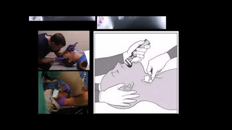 Защита шейного отдела позвоночника при освобождении дыхательных путей (не заменяет формальное обучен pfobnf itqyjuj jnltkf gjpdj