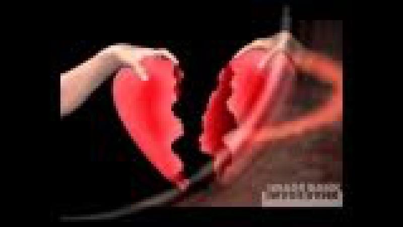 Olesea Covalenco Inimă rănită