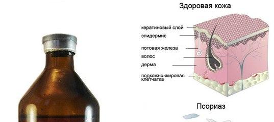 Лечение Псориаза Тыквеолом