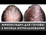 Облысение не беда! Миноксидил для волос (minoxidil) 4 мес, косметика