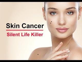 Skin Cancer – A Silent Killer Melanoma Disease