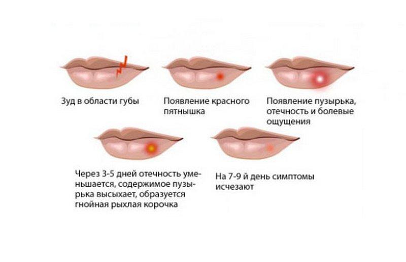 Простуда на губах быстрое лечение в домашних