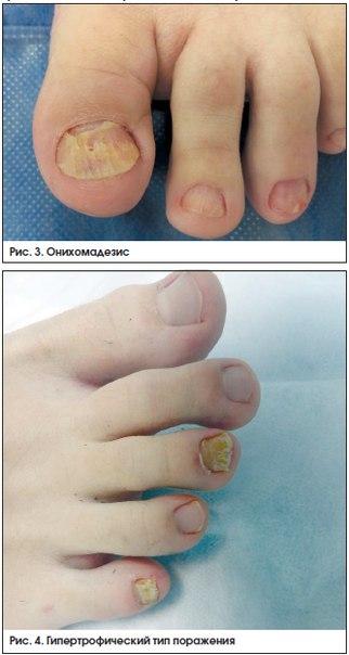 лечение деформаций стопы при диабете в клинике