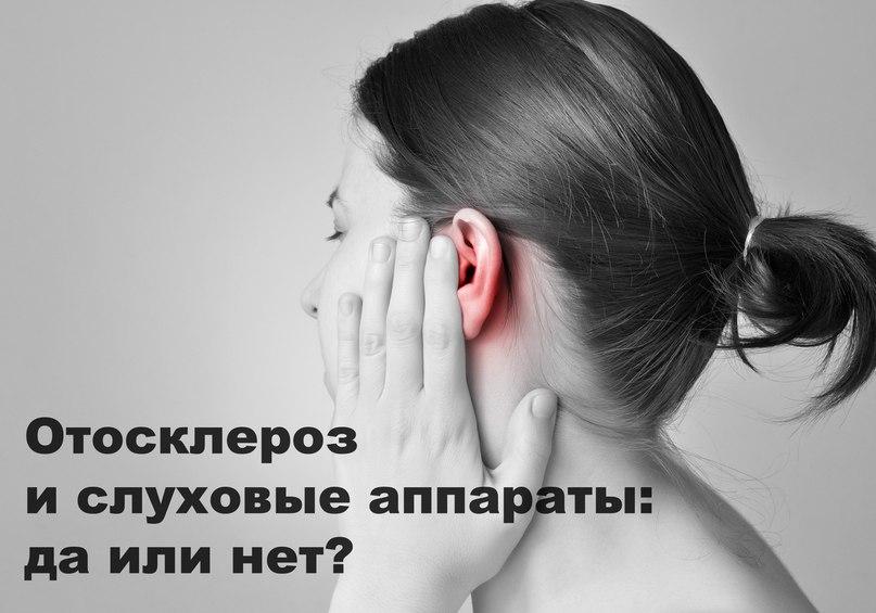 Отосклероз и слуховые аппараты: да или нет?