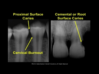 ORAL RADIOLOGY - Lecture- Teeth and their supporting structures (part 1)