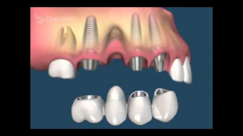 какие бывают ошибки при протезировании зубов