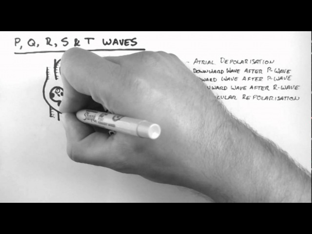 ECG 2 - P,Q,R,S T Waves
