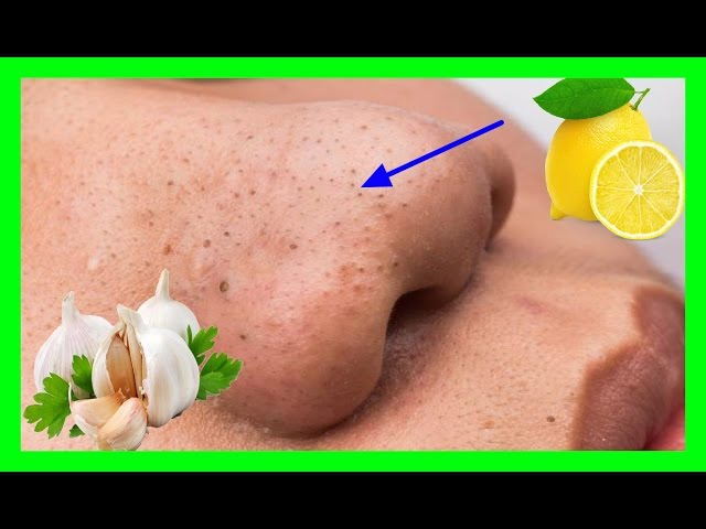Tonsilotitos remedios caseros