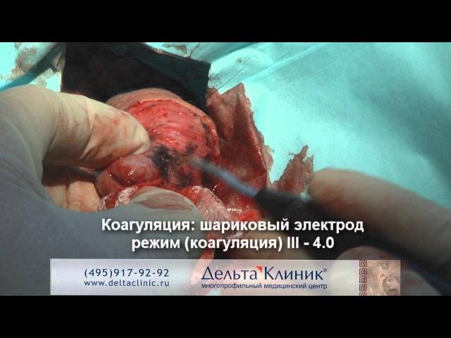 Обрезание видео. Процедура обрезания. Циркумцизия