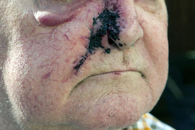 базально клеточный рак фото карцинома на лице