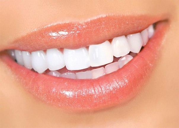 Отбеливание зубов – простые
