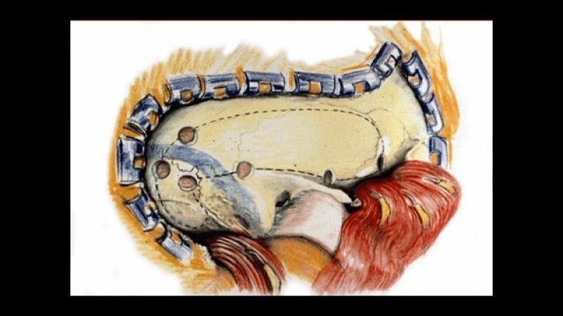 Операция Удаление менингиомы левой фронтобазальной области
