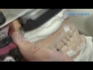 Стоматологический центр Dental Implant Москва