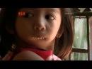 Девушка без челюсти Моя Ужасная История