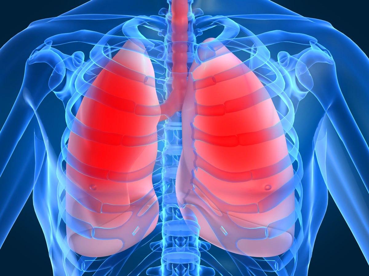 Какие симптомы при пневмонии у взрослых?