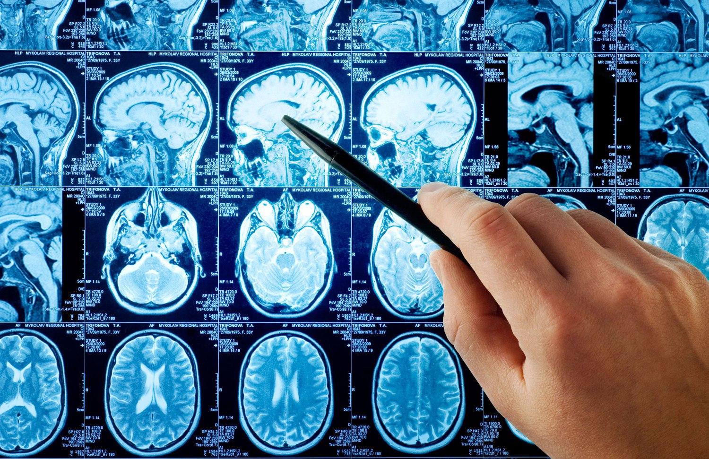 Что такое память и какие типы памяти затронуты болезнью Альцгеймера