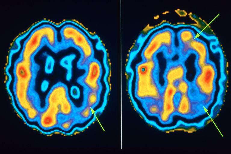 Семь этапов болезни Альцгеймера