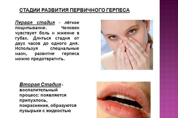 Чем быстро вылечить малярию на губах