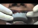 Curso de Estetica Dental - Mock Up - Simulación Estetica