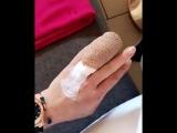 Линдси Лохан оторвало палец на отдыхе в Турции