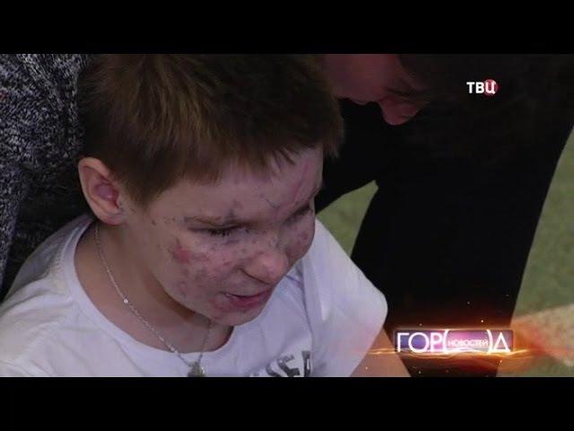 13 апреля 2015 Мечта Вани из Донбасса осуществилась В клинику привезли тигра