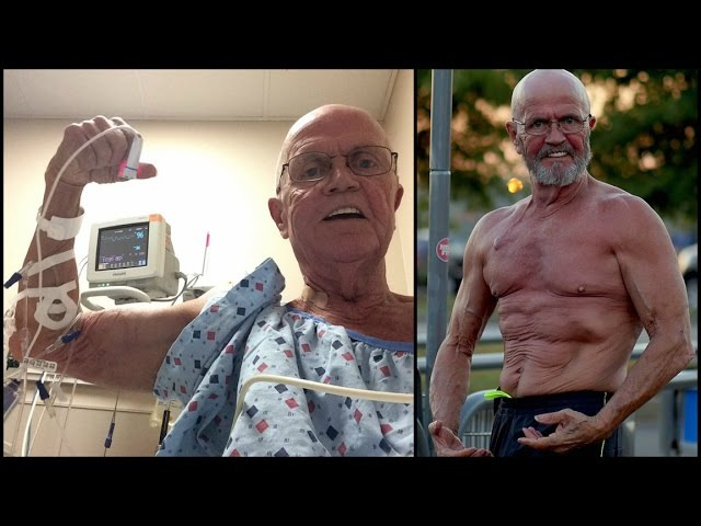 67 Year Old Fights Cancer With Superhuman Exercises