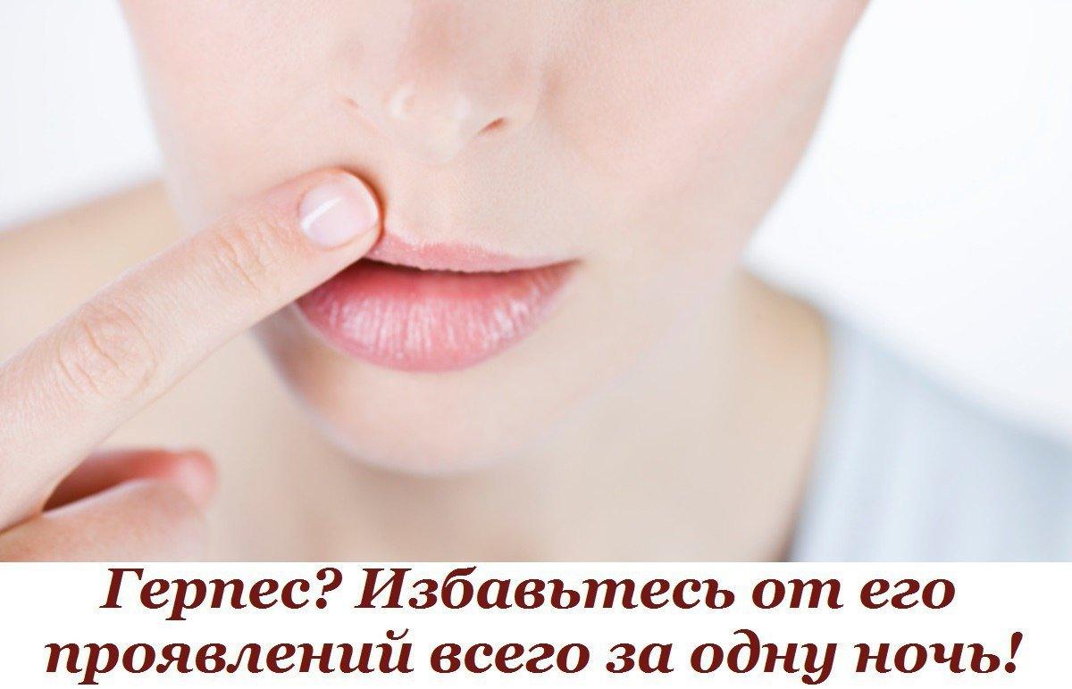 Как лечить герпес на губах в беременным