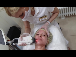 Лазерное омоложение лица на аппарате Fraxel