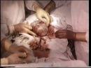 Кесарево сечение в нижнем маточном сегменте поперечным разрезом © Caesarean section in low...