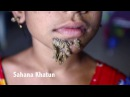 Bangladeshi girl could be first female with 'tree man' syndrome