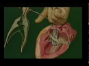 Операции при митральном пороке сердца © mitral heart disease