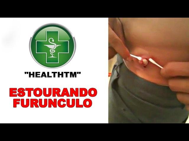 ESTOURANDO FURUNCULO HealthTM