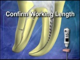 Modern Root Canal Technique Using the Advance Protaper Technology