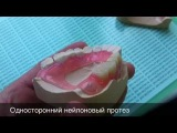 Односторонний верхний частичный нейлоновый протез