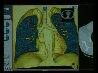 Виртуальная бронхоскопия http://www.is-zd.ru