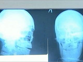 В Иркутске хирургам пришлось извлекать из головы пациента кухонный нож - Первый канал