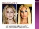 Подборка красоты после пластических операций