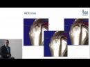 ARCUS Patientenforum Diagnostik und Therapie chronischer Schultererkrankungen