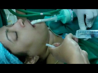 Giving Anesthesia for Laser Surgery