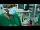 General Anesthesia for ENT Surgery:How It's Done