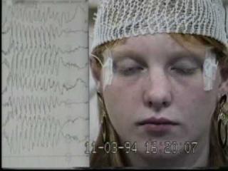 Клонии глазных яблок у пациентки с эпилепсией