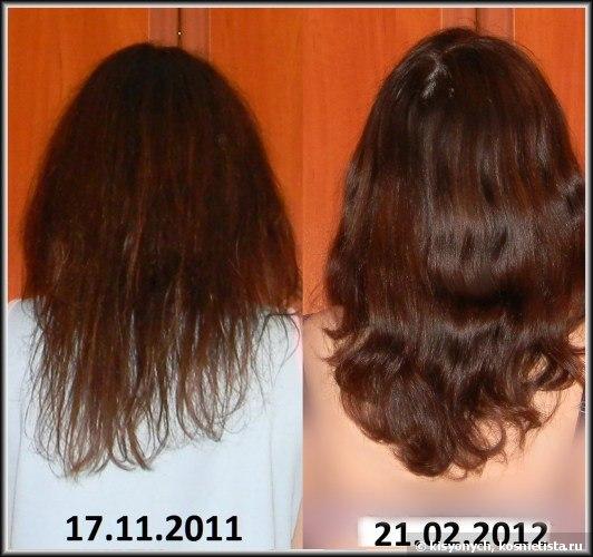 Заболевание с выпадением волос